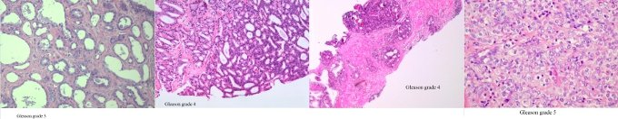 gleason all4  680 - Pathology of Prostate Cancer