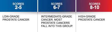 images 24 - Pathology of Prostate Cancer