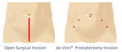open surgical incision da vinci prostatectomy incision robotic assisted laparoscopic radical prostatectomy prostate treatment options australia queensland gold coast the prostate clinic min - Robotic Prostate Surgery
