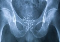 prostate cancer treatments low dose radiotherapy xray after seed insertion confirming position gold coast australia the prostate clinic min - Prostate Cancer Treatment Options