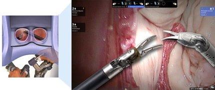 robotic assisted laparoscopic radical prostatectomy prostate treatment options australia queensland gold coast the prostate clinic min - Robotic Prostate Surgery