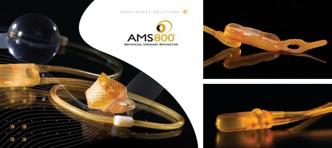 urinary incontinence ams 800 urinary control system australia the prostate clinic min - AMS 800® Urinary Control System