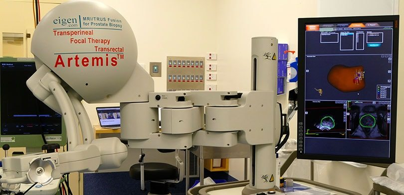 Artemis Machine prostate surgery for prostate cancer The Prostate Clinic Dr Charles Chabert Gold Coast min - Artemis