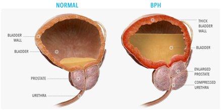 Benign Prostatic Hyperplasia BPH The Prostate Clinic Dr Charles Chabert Gold Coast Queensland - Benign Prostatic Hyperplasia - BPH