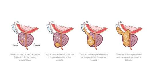 Prostate Cancer Treatments Radical Prostatectomy The Prostate Clinic Gold Coast tumors - Prostate Cancer Treatments - Radical Prostatectomy